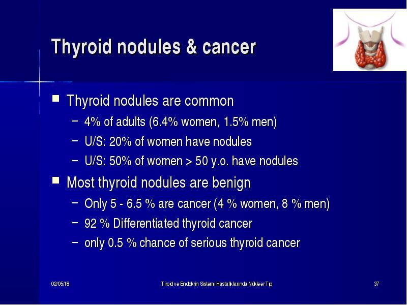 thyroid nodules nejm